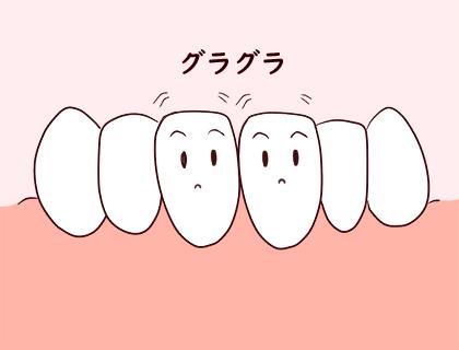 ぐらつく乳歯